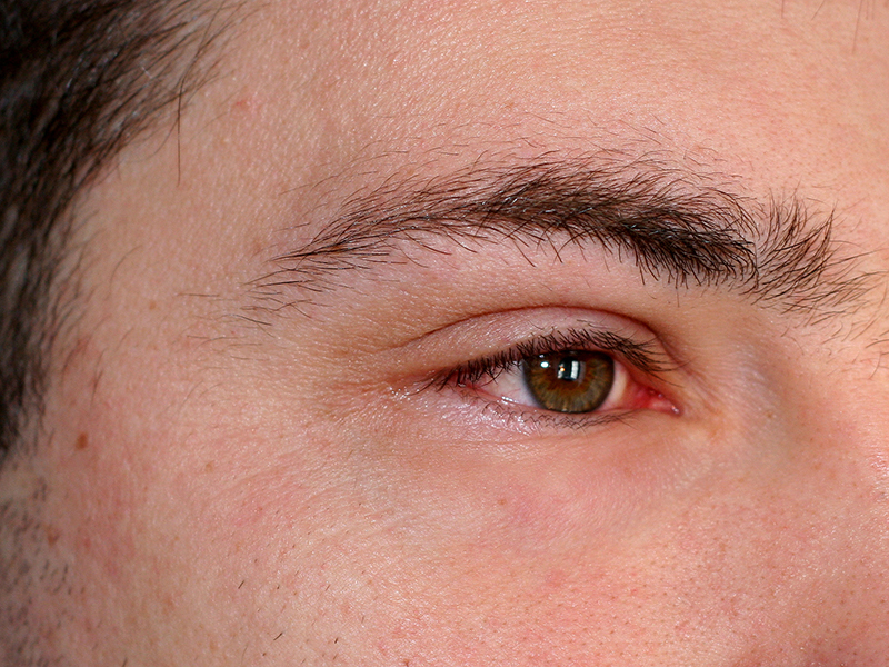 When the eyes are inflamed, they become red, swollen and can water. Frequently, the eyelids stick together.